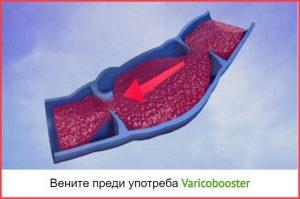 Вените преди употреба Varicobooster